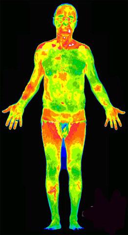 Обследование помощью тепловизора