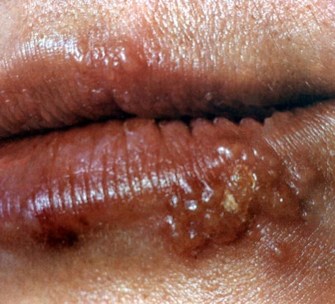 symptoms fever sore throat body aches