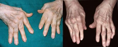 Боли суставах ревматоидном артрите тутор на голеностопный сустав для ходьбы